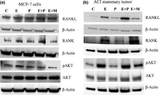 Western blot analysis of receptor activator for nuclear factor-κB ligand (RANKL)/receptor activator for nuclear factor-κB (RANK) signaling in MCF-7 cells and ACI mammary tumors. (a) Expression of RANKL, RANK, phosphorylated protein kinase B (pAKT) and AKT in MCF-7 cells treated with estradiol (E), progesterone (P), or mifepristone (M) alone or in combination for 24 h. (b) Expression of RANKL, RANK, pAKT, and AKT in mammary tumors treated with hormones for 36 weeks.