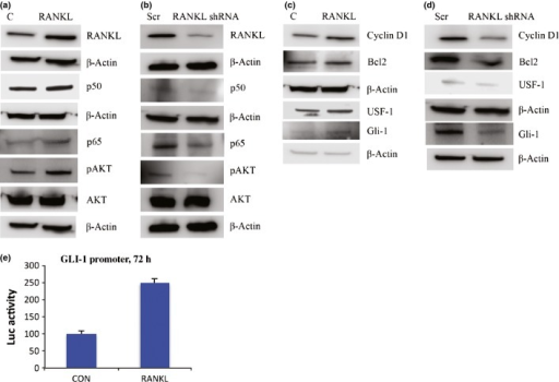 Receptor activator for nuclear factor-κB (NF-κB) ligand (RANKL) signaling activates NF-κB and glioma-associated oncogene homolog 1 (GLI-1). (a) RANKL overexpression in MCF-7 cells activates NF-κB subunits p65, p50, and protein kinase B (AKT) compared to control (C). (b) RANKL silencing in MCF-7 cells results in inactivation of NF-κB subunits and AKT compared to scramble (Scr). (c) RANKL overexpression activates cyclin D1, Bcl2, upstream stimulatory factor-1 (USF-1), and GLI-1 in MCF-7 cells. (d) Expression of cyclin D1, Bcl2, USF-1, and GLI-1 in RANKL-silenced MCF-7 cells (e) RANKL overexpression in MCF-7 cells increases GLI-1 promoter activity. Graphs show luciferase (Luc) activity, mean ± SD of two different experiments. CON, control.