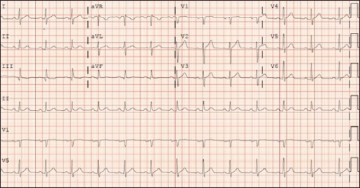 ECG prior to atrial fibrillation ablation revealing normal sinus rhythm and a heart rate of 79 beats per minute and a normal early repolarization pattern with no other findings