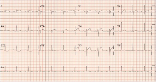 ECG at time of presentation to the emergency department revealing normal sinus rhythm with heart rate 78 beats per minute with anterolateral ST-segment elevations in leads I and aVL and V2- V4, reciprocal inferior ST-segment depressions in leads III and aVF and subtle PR-segment depressions