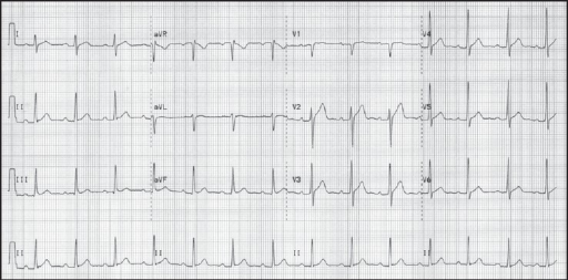 Two-month follow-up ECG revealing a normal sinus rhythm with a left posterior fascicular block and resolution of T-wave inversions