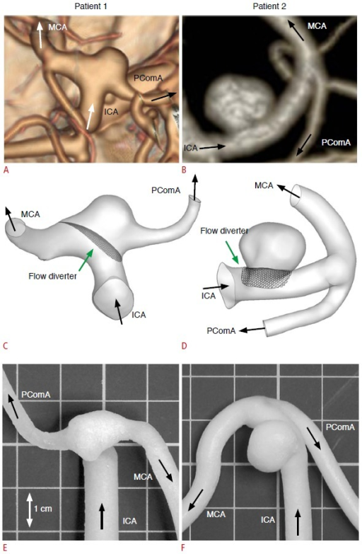 Two intracranial aneurysms and the corresponding phantom models.A, B. Computed tomography angiograms illustrate the configurations of a posterior communicating artery aneurysm in a 60-year-old woman (patient 1) (A) and a distal internal carotid artery aneurysm in a 71-year-old woman (patient 2) (B). C-F. These angiograms were used to generate computational fluid dynamics models (C, D) and physical phantom models (E, F). ICA, internal carotid artery; MCA, middle cerebral artery; PComA, posterior communicating artery.