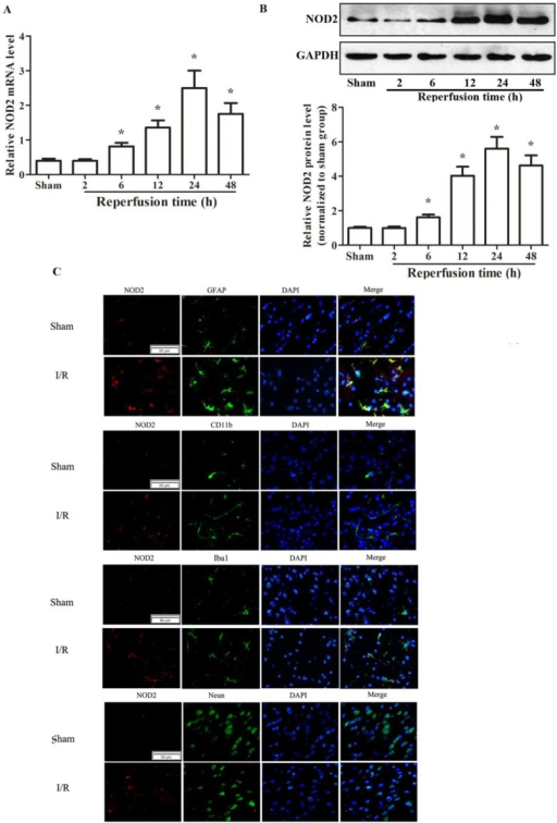 The expression of NOD2 in wild type (WT) mice was increased after cerebral ischemia-reperfusion injury. (A) Relative quantitative mRNA levels of NOD2 were determined by real-time RT-PCR analysis in penumbral cortex from WT mice after 2 h occlusion of the middle cerebral artery (MCAO) and 2 h, 6 h, 12 h, 24 h, 48h reperfusion. (B) Western blot analysis of NOD2 protein levels in the penumbral cortex from WT mice after 2 h MCAO and 2 h, 6 h, 12 h, 24 h and 48 h reperfusion. Results are representative of six independent experiments. *P<0.05, I/R WT mice vs. sham-operated WT mice. (C) Representative images of double immunolabeling for NOD2 and glial fibrillary acidic protein antibody (GFAP, astrocyte marker), CD11b (myeloid cell marker), Iba-1 (microglial/macrophage marker) or NeuN antibody (neuron marker) in the penumbral cortex from WT mice after 2 h MCAO and 24 h reperfusion. DAPI indicates 4',6-diamidino-2-phenylindole. Scale bars: 50 μm.