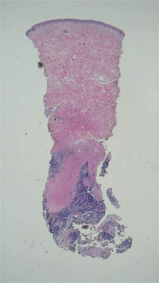 Tumor is present at the base of the punch biopsy specimen. It is in the deep dermis and extends into the subcutaneous tissue [hematoxylin and eosin, ×2]