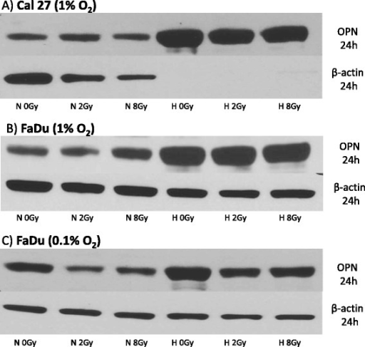 Western blot showing OPN protein expression under normoxic (N = 21 % O2) and hypoxic (H = 1 % O2 or 0.1 % O2) conditions 24 h after irradiation with 0, 2 and 8 Gy in Cal27 (a) and FaDu (b), (c) head and neck cancer cell lines. Hypoxic conditions were 1 % O2 for both cell lines. FaDu cells were also treated with 0.1 % O2 (c) showing comparable results