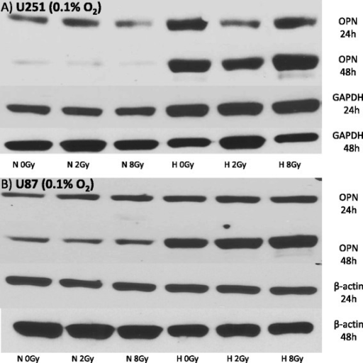 Western blot showing OPN-expression under normoxic (N = 21 % O2) and hypoxic (H = 0.1 % O2) conditions 24 h and 48 h after irradiation with 0, 2 and 8 Gy in U251 (a) and U87 (b) glioblastoma cell lines