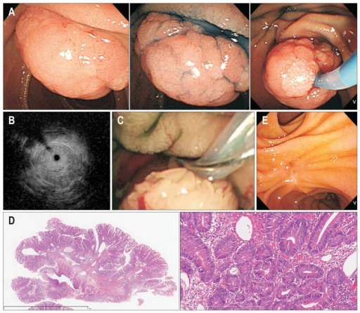 Presentation of ampullary tumor and endoscopic resection procedures (A, C, E) and histological findings of a resected tumor specimen (B). (A) Endoscopic findings of the ampullary tumor. A 2-cm exposed reddish tumor was identified in the papilla of Vater. (B) Endoscopic ultrasonography revealed that the ampullary tumor had not invaded the duodenum, pancreas, terminal common bile duct, or main pancreatic duct. (C) Endoscopic double-snare papillectomy was performed. After grasping and pulling the tumor with the pulling snare, the tumor was safely and easily grasped by the cutting snare. (D) Histological examination demonstrated tubular adenoma with moderate to severe dysplasia. No lymphatic invasion or vascular involvement was identified (×200). (E) Endoscopy of the ampullary portion of the duodenum following endoscopic papillectomy revealed no neoplastic lesions.