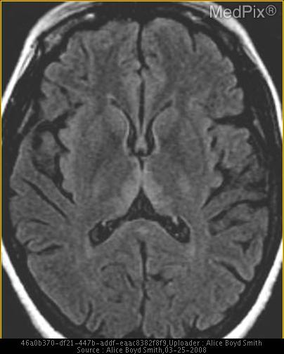 Axial T2 FLAIR demonstrates hyperintensity in the bilateral thalami, and periaqueductal grey matter.  Post contrast imaging reveals enhancement in the periaqueductal grey matter, and bilateral mamillary bodies.