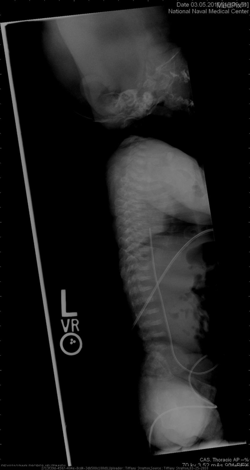 diffuse osteopenia, multiple fractures, bowing of extremities, compression fractures of spine