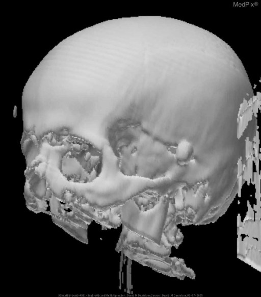 3-D reconstruction of ball bearing embeded in left side of cranium from VB-IED