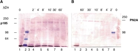 Western blot analysis demonstrating the phosphorylation state specifity of the PN2A antibody. Specifity of (A) anti-Her-2/neu (p185) antibody and (B) anti-phospho (tyr1248) Her-2/neu antibody (PN2A) is shown by Western blot analysis of whole-cell lysates. SKBR3 cells were treated without (lanes A1 and B8) and with 100 ng ml−1 EGF for 2 (lanes A3 and B6), 4 (lanes A4 and B5), 8 (lanes A5 and B4), 10 (lanes A6 and B3), 30 (lanes A7 and B2) and 60 (lanes A8 and B1) min (kDa, molecular weight in kilodalton, molecular weight markers at 250, 98 and 64 kDa).