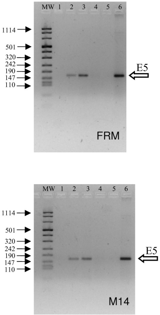 Presence of HPV-16 E5 DNA and expression of the specific mRNA in M14 and FRM cells after infection with HPV-16 E5 retroviral vector. The retroviral vector containing HPV-16 E5 gene was obtained by the transfection of Phoenix A retroviral producer cells with the LZRSpBMNZ-E5 plasmid. The control retroviral vector was obtained by the transfection of Phoenix cells with the empty LZRSpBMNZ plasmid. Cells were infected with either recombinant retrovirus or with the control retrovirus. Total DNA or RNA (1 μg) extracted from cells 96 h post infection were reverse transcribed and amplified with E5P65 sense (TGC ATC CAC AAC ATT ACT GGC G) and E5M3AS antisense (AAC ACC TAA ACG CAG AGG CTG C) primers. Upper panel: FRM cells; Lower panel: M14 cells. Lane 1: DNA from cells infected with the control retrovirus; Lane 2: DNA from cells infected with the HPV-16 E5 retrovirus; Lane 3: DNA digested total RNA from cells infected with the HPV-16 E5 retrovirus; Lane 4: Non retrotrascribed DNA digested total RNA from cells infected with the HPV-16 E5 retrovirus; Lane 5: No template negative control; Lane 6 positive control (0.5 μg Siha cell DNA). MW: DNA molecular weight marker VIII (Roche Biochemicals SpA): arrows on the left-hand side indicate the bp length of some reference bands. The band with size of 160 bp (left sided empty arrow) demonstrate the presence of viral E5 sequence and its transcription. Four independent experiments gave similar results.