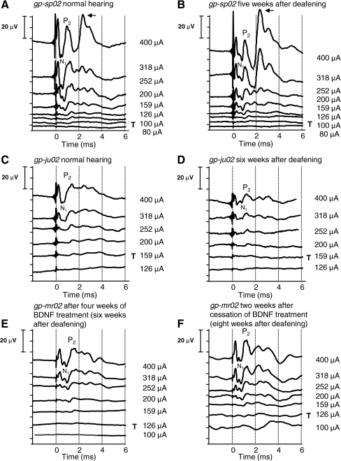 Recordings of representative eABRs evoked with current pulses of 400 μA down to below threshold in two control animals (gp-sp02 and gp-ju02) and one experimental animal (gp-mr02). Recordings of two control animals are depicted to illustrate the inter-animal variability. A, C Recorded in normal-hearing condition, prior to deafening; B, D recorded 5 and 6 weeks after deafening, respectively. E Recorded after 4 weeks of BDNF treatment and F 2 weeks after cessation of the treatment. T indicates the threshold of wave N1–P2. The arrow indicates the peak that probably reflects the digastric muscle response.