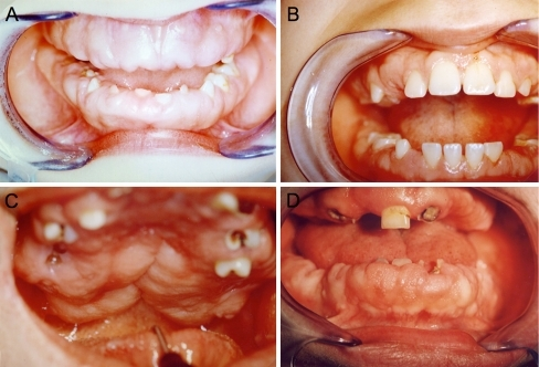 Gingival overgrowth in a a 6-year-old female and b 13-year-old male showing symmetrical gingival hyperplasia. c Severe involvement in a male at age 36 years and d a female proband aged 37 years, 7 years after last surgical intervention