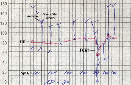 Figure 4:A new predisposing factor for trigemino-cardiac reflex during ...