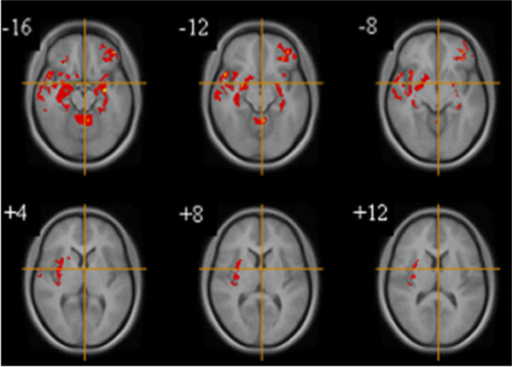 Gray matter differences between women with restricting (n = 8) and binge purge AN (n = 6). Voxel-based morphometry maps thresholded at p = 0.01 for false positives and corrected for covariates (Total gray matter volume, Age, BMI, Years Education, Trait Anxiety). Red indicates deficits in gray matter volume in women with RAN compared to BPAN. Z score coordinates given are from the Talairach atlas.