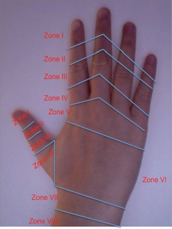 Zones of the extensor tendon muscles.