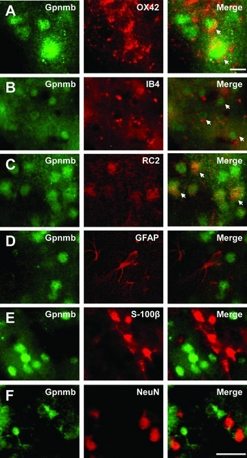 Characterization of Gpnmb-IR cells in cortical layers II–III with multiple markers. Sections were double-stained for Gpnmb (FITC, green) and the indicated markers (Texas Red, red). Note that Gpnmb-IR cells are co-stained with OX42, IB4, and RC2 (arrows). Scale bars: A, 10 μm; B–F, 30 μm.