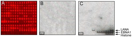 Phosphorylation assays on the EBV plus LANA protein array.A. Protein array probed with anti-GST antibody followed by CY5-labeled secondary antibody. Note that the EBNA1 (392–641)-V5-6xHis, 6xHis-Biotin AviTag-LANA (1–329) and control proteins are not expressed as GST-fusions and are not detected with anti-GST antibody. B. Control incubation with [γ32P]-ATP in kinase buffer. C. Incubation with [γ32P]-ATP, kinase buffer plus casein kinase 1, gamma 2 (CSNK1G2). Boxed signal, NME1 kinase control.