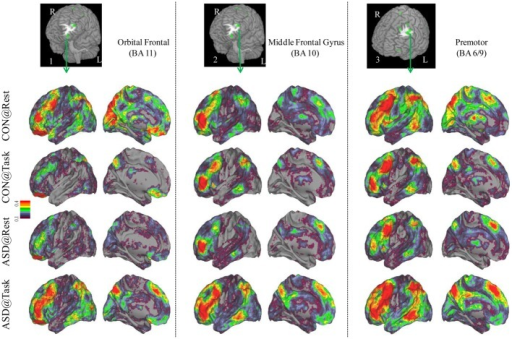 Seed-based connectivity maps of distant functional connectivity patterns in resting and task states, for three clusters showing Group × Task interaction: left orbital frontal gyrus (BA 11) (left panel), left middle frontal gyrus (BA 10) (middle panel) and left premotor (BA 6/9) (right panel). Region numbers 1–3 on the left corner in the brain image correspond to the region number in Figure 1.