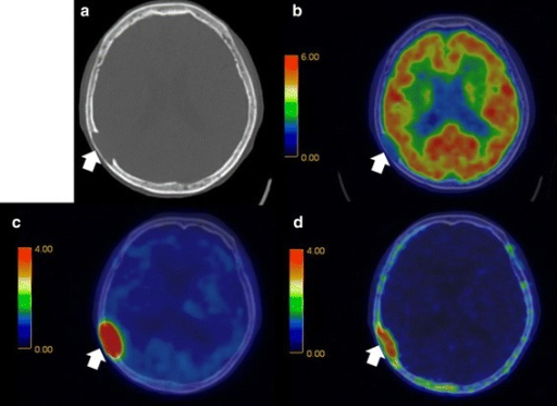 Fusion images of a CT, b18F-FDG, c11C-MET, and d11C-4DST obtained in a 79-year-old woman with multiple myeloma (IgG-κ). The arrow shows an osteolytic lesion. 11C-MET PET/CT and 11C-4DST PET/CT detected activity in the skull lesion, whereas 18F-FDG PET/CT could not detect any activity because of normal brain accumulation