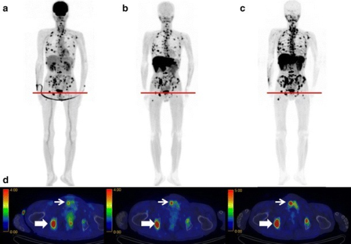 Maximum intensity projection images and fusion images. a18F-FDG, b11C-MET, and c11C-4DST PET images obtained in a 63-year-old man (Patient 1) with MM (IgA-κ). Numerous active lesions are visible in the three maximum intensity projection images. The fusion images are for the cross-section at the level of the red lines (d). The lesion in the right ischium (bold arrow) was positive on all three PET scans. However, the lesion in the right pubis (narrow arrow) was only positive on the 11C-MET PET and 11C-4DST PET scans and was equivocal on the 18F-FDG PET scan (color figure online)