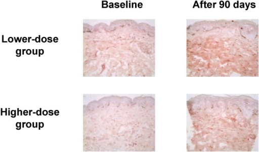 Type I procollagen immunostaining in the buttock skin before and after aloe vera intake (original magnification ×200). The results are representative of 6 biopsied subjects in each group (from ref. 23).