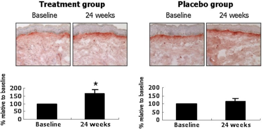 Ginseng mixture treatment increases type I procollagen immunostaining in human facial skin. Immunohistochemistry for SP1.D8 was performed from punch-biopsied skin samples, and the degree of staining was visually graded by five dermatologists. Data are mean ± SE values (n = 6, treatment group; n = 7, placebo group). *p < 05 by Wilcoxon signed rank test, compared with baseline (from ref. 35).