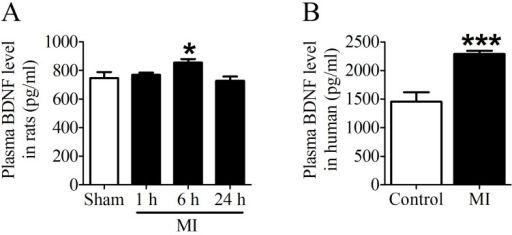 Plasma BDNF concentration in myocardial infarction (MI) rats and human. (A) Plasma BDNF levels were measured in sham and ischemia for 1 h, 6 h and 24 h by ELISA. (B) Plasma BDNF concentration was measured in control and MI patients. *p <0.05 vs. sham, n = 4 each group, ***p<0.001 vs. control, n = 5 in control group while n = 7 in MI group.