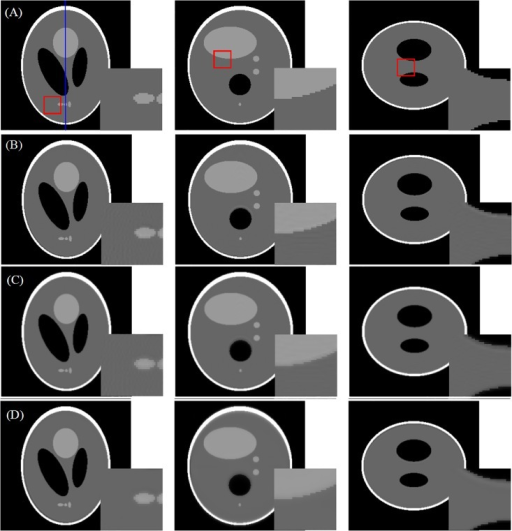 OSEM reconstructed results using different projection and back-projection operators.Columns from left to right are the illustrations of cross section, coronal section and sagittal section, respectively. Row (A): phantom images; Row (B): reconstruction with linear interpolation based FSNP and voxel-based back-projection (RMSE = 2.58%); Row (C): reconstruction with distance-driven projection and back-projection pairs (RMSE = 2.34%); Row (D): reconstruction with blob based FSNP and voxel-based back-projection (RMSE = 1.96%).