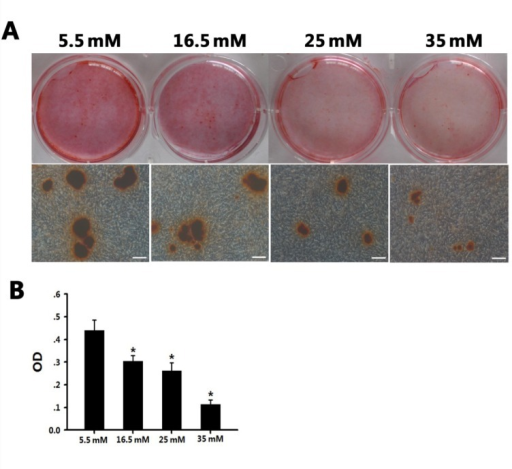 High glucose had an inhibitory effect on BMSC osteogenic differentiation.A: BMSCs were cultured in four osteogenic media (glucose concentrations: 5.5 mM, 16.5 mM, 25 mM, and 35 mM, respectively) for 21 days; mineralized nodules were detected following Alizarin red S staining. Scale bars represent 100 µm.B: Graph illustrating the quantitative evaluation of Alizarin red S staining of the four groups. *P < 0.05 vs. the normal/Diff group