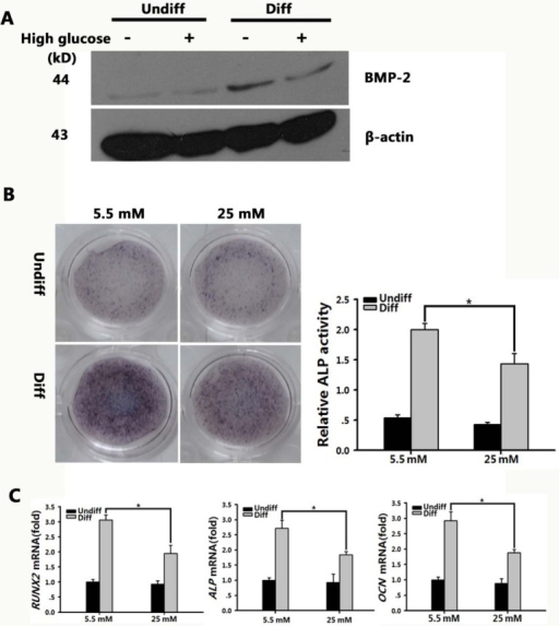 BMP signaling pathway in BMSCs was inhibited in high-glucose microenvironment.A: BMP-2 levels were tested after BMSCs were grown in normal or high-glucose osteogenic medium for seven days. β-actin was used as an internal control.B: Scanned images of ALP staining of BMSC after 7-d culture in osteogenic medium containing normal (5.5 mM) or high glucose (25 mM). Graph depicts the quantitative evaluation of ALP activity. The results represent the mean ± SD. *P < 0.05 vs. the normal/Diff group, n = 3C: Real-time PCR analysis of RUNX2, ALP, and OCN expression in normal and high-glucose conditions grown in basal (Undiff) or osteogenic medium (Diff) for 7 d. The expression levels were normalized to that of β-actin. The results represent the mean ± SD from three independent experiments performed in triplicate. *P < 0.05 vs. the normal/Diff group