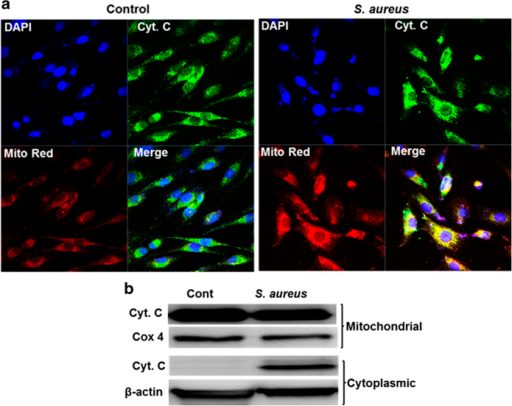 S. aureus-challenged retinal Müller glia releases cytochrome c from mitochondria. MIO-M1 cells were left uninfected (control) or challenged with S. aureus (SA) RN6390 (multiplicity of infection, 10 : 1) for 8 h. Cells were stained with MitoTracker red (Mito Red) dye followed by immunostaining for cytochrome c and observed under confocal microscope (a). In another experiment, S. aureus-challenged MIO-M1 cells were subjected to subcellular fractionation followed by western blot analysis of cytochrome c (b). Cox 4 and β-actin antibodies were used as protein loading controls for mitochondrial and cytoplasmic fractions, respectively. Results are representative of two independent experiments.