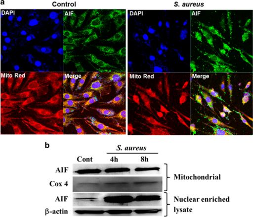 S. aureus induces release of AIF from mitochondria in retinal Müller glia. MIO-M1 cells were left uninfected (control) or challenged with S. aureus RN6390 (multiplicity of infection, 10 : 1) for the indicated time points. Cells were stained with MitoTracker red (Mito Red) followed by immunostaining for AIF and observed under confocal microscope (a). In another experiment, S. aureus-challenged MIO-M1 cells were subjected to subcellular fractionation followed by western blot for AIF (b). Cox 4 and β-actin antibodies were used as protein loading controls for mitochondrial and nuclear enriched fractions, respectively. Results are representative of two independent experiments.