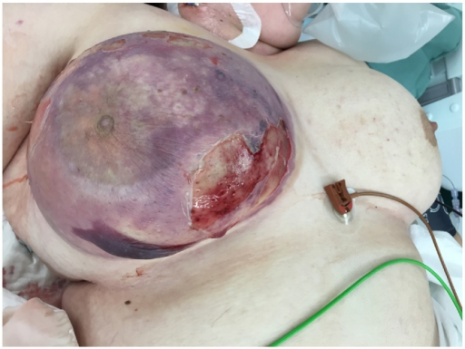 Appearance of the breast preoperatively, showing a large area of ulceration.