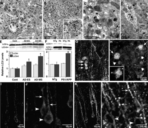 Increased macroautophagy in PS1/APP mice and human brains. (A–D) EM images of cortical neuropil show an absence of AVs and normal neurite profile in 9-mo-old NTg mouse brains (A, arrowheads outline normal neurites) and a marked accumulation of AVs within enlarged or dystrophic neurites in PS1/APP mice (B, arrowheads outline dystrophic neurite profiles in C) and biopsied brain material from an AD patient (B, inset). At higher magnification (C), AVs include autophagosomes (arrows) and multilamellar bodies (arrowhead). In normal dendrites of PS1/APP mice, multiple AVs are frequently seen (D, arrows). (E and F) LC3 quantification analyzed from immunoblots of LC3-I and LC3-II (top) in prefrontal cortical homogenates from cases of nonaffected (Cont), early stage (preclinical) AD (AD-ES), and moderate AD (AD-MS; E), and from brains of 18–22-mo-old PS1/APP (PA) mice (n = 3; F) compared with nontransgenic (NTg) controls (n = 3; *, P < 0.01). Error bars represent SEM. (G–L) LC3 immunofluorescence in 9-mo-old PS1/APP mice can be seen mainly as puncta in dystrophic dendrites of the cortex (G, arrows) and along adjacent dendrites. LC3 (H, arrows) is strong in dystrophic neurites in the periphery (asterisks) of a thioflavin S–labeled plaque core (H, inset) but is less so in neurites closest (H, arrowheads) to the Aβ deposit. LC3 is diffuse and uniform in neurons of NTg mice (I and J) but is predominantly vesicular and distributed more to the dendrites (arrows) than the cell soma (arrowheads) in 9-mo-old PS1/APP cortex (K and L).
