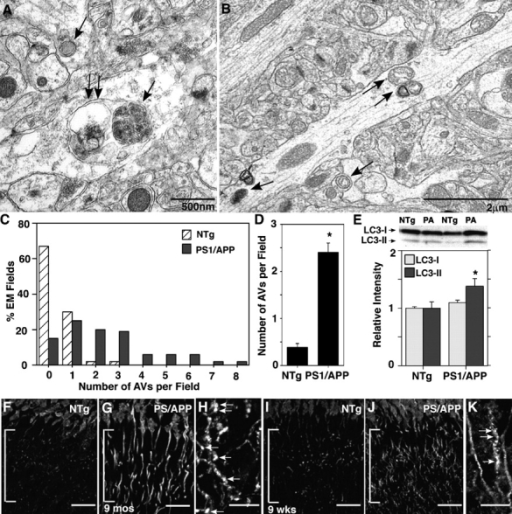 Identification of macroautophagy in the hippocampus of predepositing PS1/APP mice. Ultrastructural inspection of brain tissue from PS1/APP mice (A–D) shows that AVs (A and B, arrows) are five times more frequent in the dendrites of 8-wk-old PS1/APP than in those of age-matched NTg mice. The frequency of AVs per EM field (C) and mean number of AVs per EM field (D) within the hippocampal molecular layer (n = 3) are shown. LC3 immunoblot and analysis (E) and immunofluorescent labeling (F–K) of the hippocampal dendrites (brackets) in 8–9-wk-old PS1/APP and NTg mice show LC3-II elevation (P < 0.05) in 8-wk-old PS1/APP compared with NTg mice (E). (D) *, P < 0.001. (E) *, P < 0.05. Error bars represent SEM. LC3 immunoreactivity in pyramidal cell dendrites is increased in 9-mo-old (F–H) and 9-wk-old (I–K) PS1/APP mice and frequently exhibits a punctate labeling pattern, which is more evident at 9 mo than at 9 wk (H and K, arrows) and is uncommon in NTg mice (F and I). Bars (F, G, I, and J), 20 μm; (H and K), 10 μm.