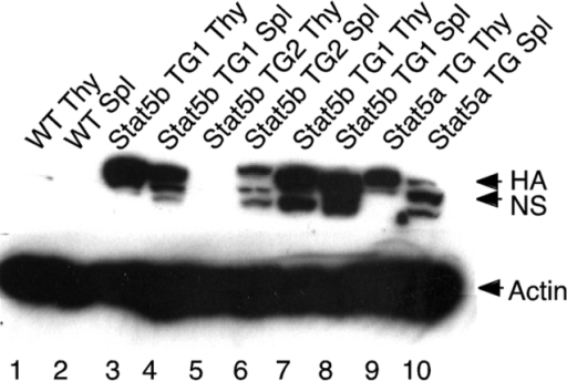 Anti-HA Western blotting of splenic and thymic lysates from two Stat5b transgenic lines (TG1 and TG2) and one Stat5a line (TGA). WT lysates are included as controls.