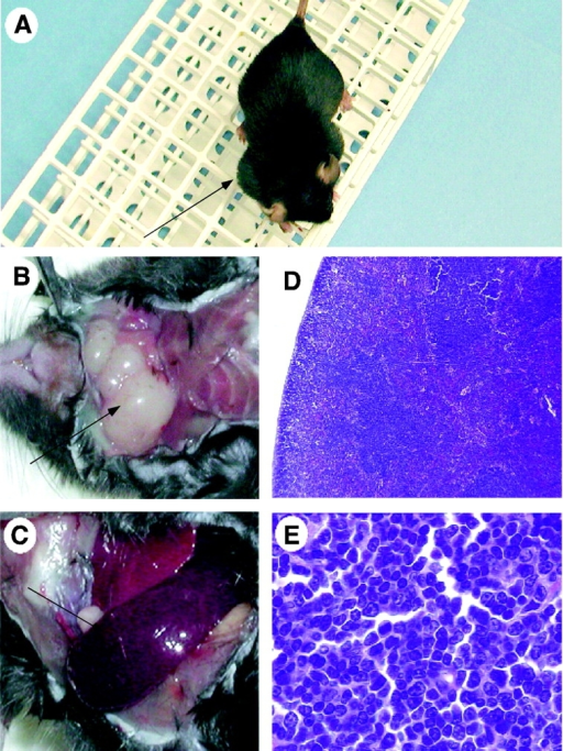 Lymphoblastic lymphoma in a representative Stat5b transgenic mouse. Prominent cervical adenopathy (A and B) and splenomegaly (C) were evident. (D and E) A representative cervical lymph node with round nuclei with stippled chromatin, prominent nucleoli, and frequent mitotic figures.