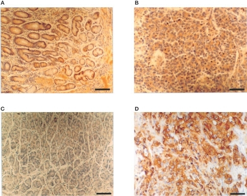 Binding of SC142 scFv to normal stomach tissue (C) and poorly differentiated human gastric adenocarcinoma tissue (D) as detected by immunohistochemical staining comparable with binding of SC142 antibody to normal stomach tissue (A) and poorly differentiated human gastric adenocarcinoma tissue (B). (A) and (C) Scale bar=60 μm; (C) and (D) Scale bar=30 μm. To detect scFv, the system of biotin-labelled SC142 scFv and streptavidin/horseradish peroxidase conjugate was used as this system eliminates nonspecific binding signal because the covalent-like interaction between biotin and streptavidin is so strong that streptavidin is highly specific for biotin. SC142 scFv was biotinylated as described in Materials and Methods.