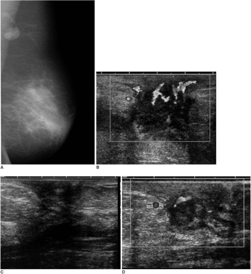 A 44-year-old woman with periareolar pain of the left breast.A-D. The initial mediolateral oblique mammogram shows asymmetry of the left subareolar area, periareolar skin thickening and axillary lymphadenopathy (A), and the initial sonography shows a heterogeneous mass with peripherally increased vascular flow (B). About one year after medical treatment, the mass disappeared on sonography with a remaining Ill defined low echoic subareolar portion (C). The discrete subareolar mass was again noted seven months later on sonography when she revisited the hospital with a heat sensation and tenderness (D).
