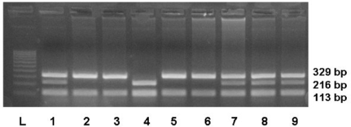 Cleavage of 442 bp PCR products of GSTP1 gene by the Alw26I restriction endonuclease. Ethidium bromide-stained electrophoresed representative PCR-RFLP products samples: 100 bp ladder (lane L), Ile/Ile allele (lanes 2, 3, 5, 6); Ile/Val allele (lanes 1, 7, 8, 9) and Val/Val allele (lane 4).