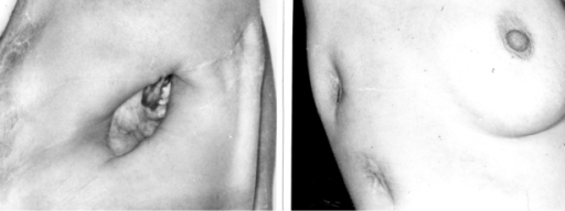 On the left, a conventional open pleural window scar in a male patient. On the right, the upper scar is after POP removal, and below is a scar after removal of a regular 36FR chest tube