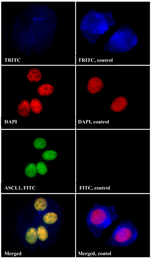 Fluorescent immunostaining of ASCL1 in BON1 cells. Cells were visualised by TRITC-labeled phalloidin (blue) and DAPI (red). Primary antibodies to ASCL1 were detected by FITC-labelled secondary antibodies (green). Yellow, indicates co-localisation (merged).