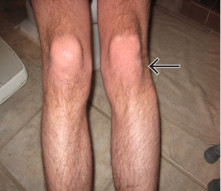 Picture of patient presenting with knee pain and deformity of left lateral knee