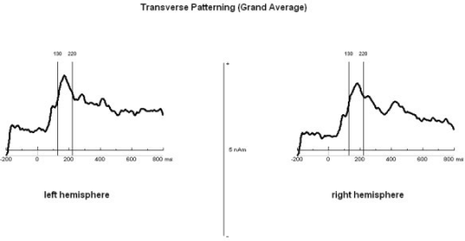 Source waveforms of the hippocampal sources during the transverse patterning task. Source waveforms (grand average of the correct trials over all subjects) of the hippocampal sources for the left and right hemispheres during the transverse patterning task. The marked time segments of 130-220 ms after stimulus presentation were chosen for further analyses.