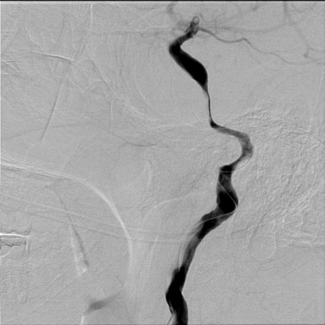 Right lateral common carotid digital subtraction angiography cervical view showing microguidewire in the dissected segment of cervical carotid artery, worsening the underlying pathology.