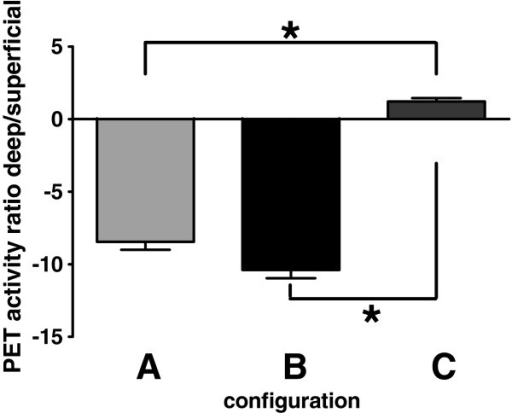 Ratio of deep vs. superficial PET ROI activity changes (real treatment – sham treatment). Configurations A and B lead to a marked decrease, whereas configuration C lead to a small increase in activity ratio. *: indicated p < 0.05 (one way ANOVA).