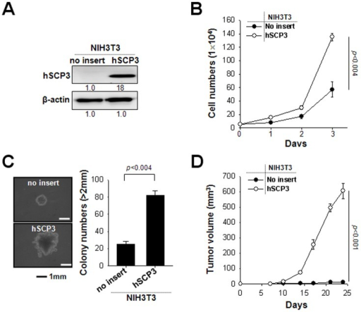 hSCP3 increases oncogenic potentials of NIH3T3 cells in vitro and in vivo.(A) Western blot analysis of expression of hSCP3 in NIH3T3 cells retrovirally transduced with a pMSCV vector encoding hSCP3 (NIH3T3/hSCP3). NIH3T3/No insert cells were used as a control. Numbers below western blots refer to the relative values of the intensity normalized to no insert control. (B) In vitro growth curves of NIH3T3/hSCP3 cells. Cells were counted after trypan blue staining to exclude dead cells. (C) Colony-forming capacity of NIH3T3/hSPC3 cells in soft agar; (left) Representative images of average colony size in each group; (right) Bar graph representing the number of colonies with diameters greater than 2 mm in soft agar (scale bar: 1 mm). (D) Tumorigenicity of NIH3T3/hSCP3 cells. Balb/c Nude mice (n = 5) were inoculated subcutaneously with 1×105 cells/mouse of NIH3T3/no insert or NIH3T3/hSCP3 cells. Error bars represent the mean ± SD.