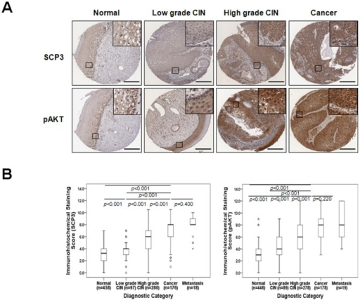SCP3 overexpression is associated with tumor progression in human cervical neoplasia specimens.(A) Representative immunohistochemical staining images of SCP3 and pAKT in cervical tissue from patients with low-grade CIN, High-grade CIN, and cervical carcinoma. Boxed regions are displayed at high magnification in insets (scale bar: 300 µm). (B) Box plot depiction of IHC staining scores. There was an increasing amount of SCP3 and pAKT expression as tumor stage progressed from low-grade CIN to high-grade CIN to cancer. Symbols indicate individual samples. Numbers associated with symbols indicate case numbers.